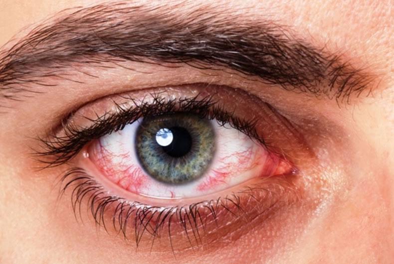 Il primo piano di un occhio arrossato