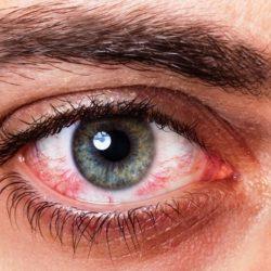 distacco-retina-approfondimento