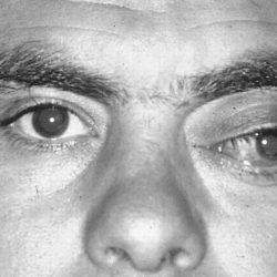 glioma-ottico-approfondimento